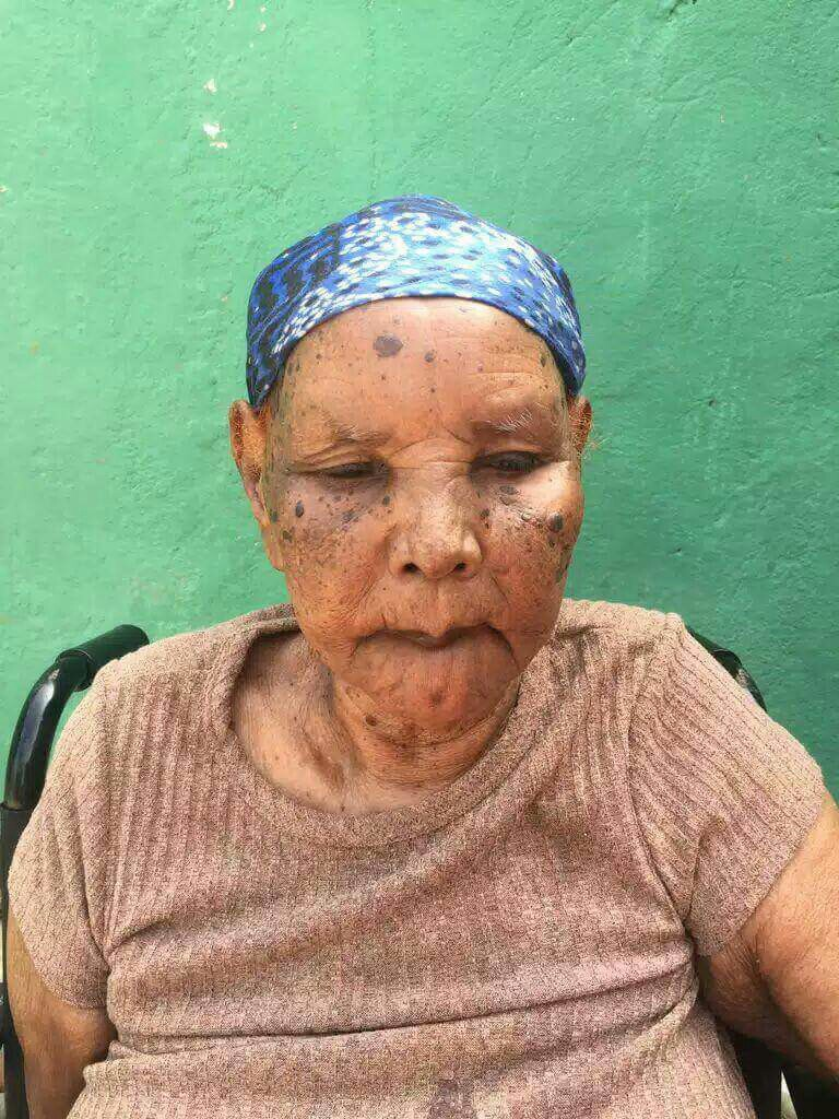 Ethiopia 104 Year Old Grandma Of Activist Beaten To Death